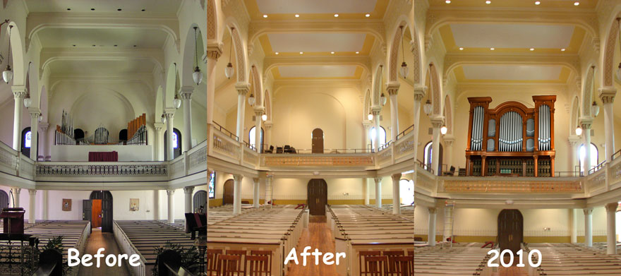 organ-before-during-and-after